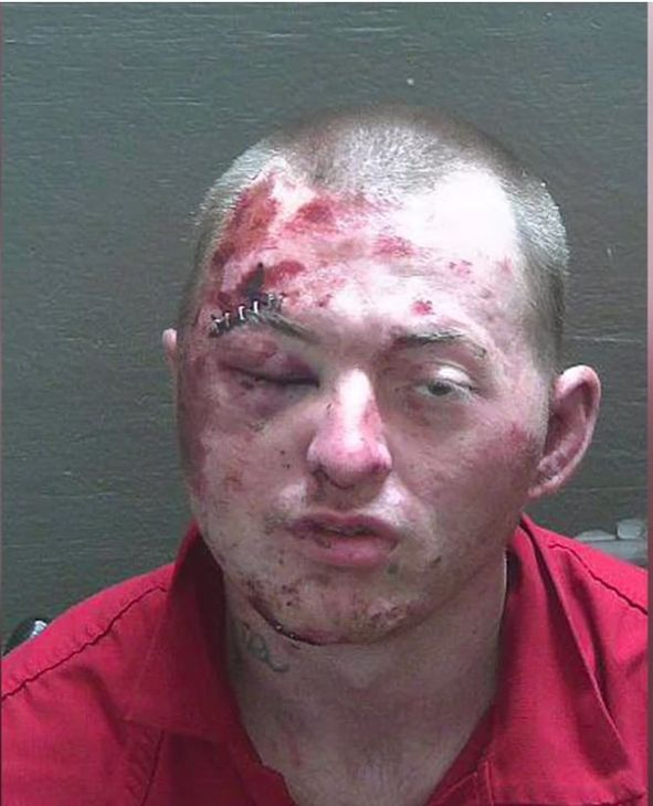 Florida man badly loses fight with police